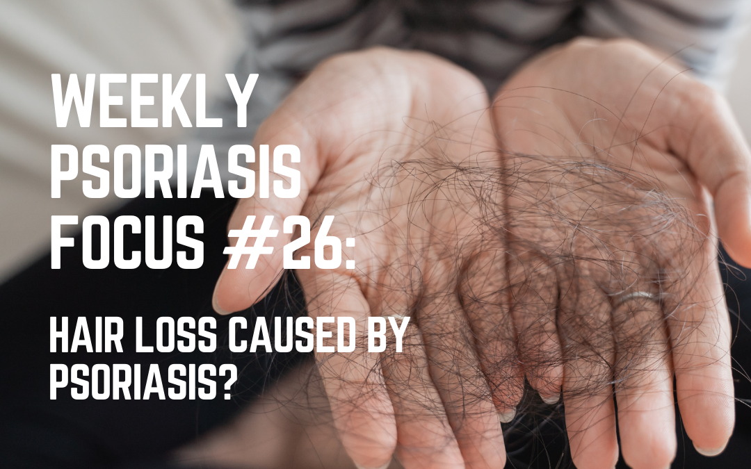 Weekly Psoriasis Focus #26: Hair loss caused by psoriasis?