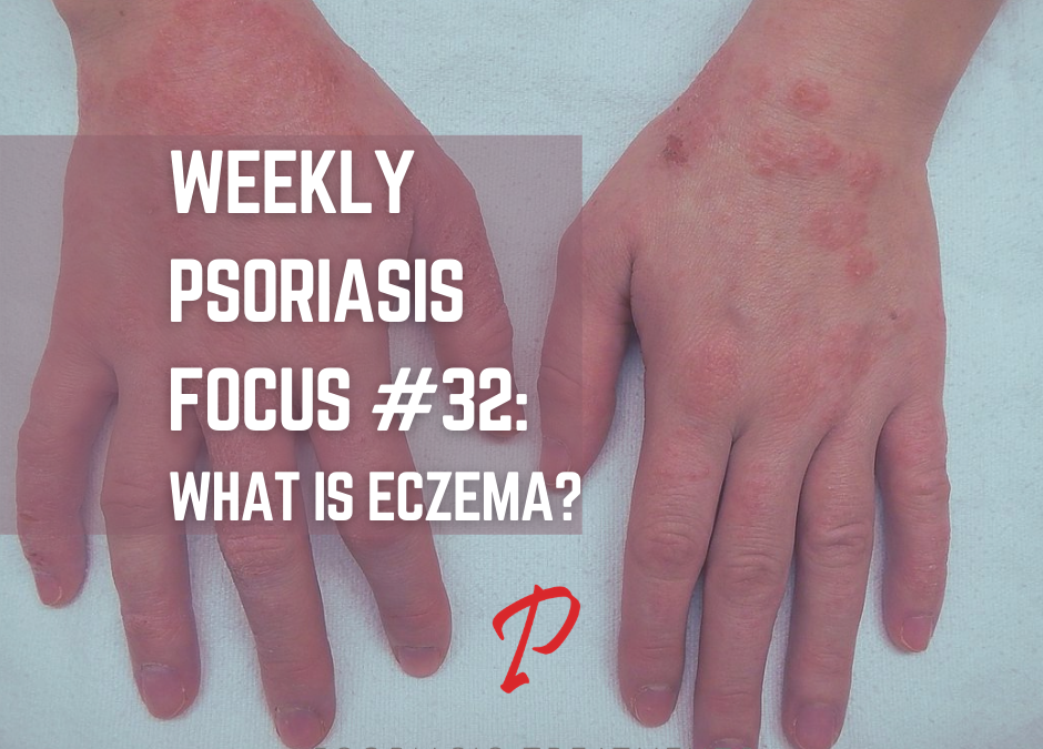 Weekly Psoriasis Focus #32: What is Eczema?
