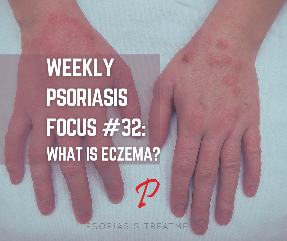 best psoriasis treatment in world)