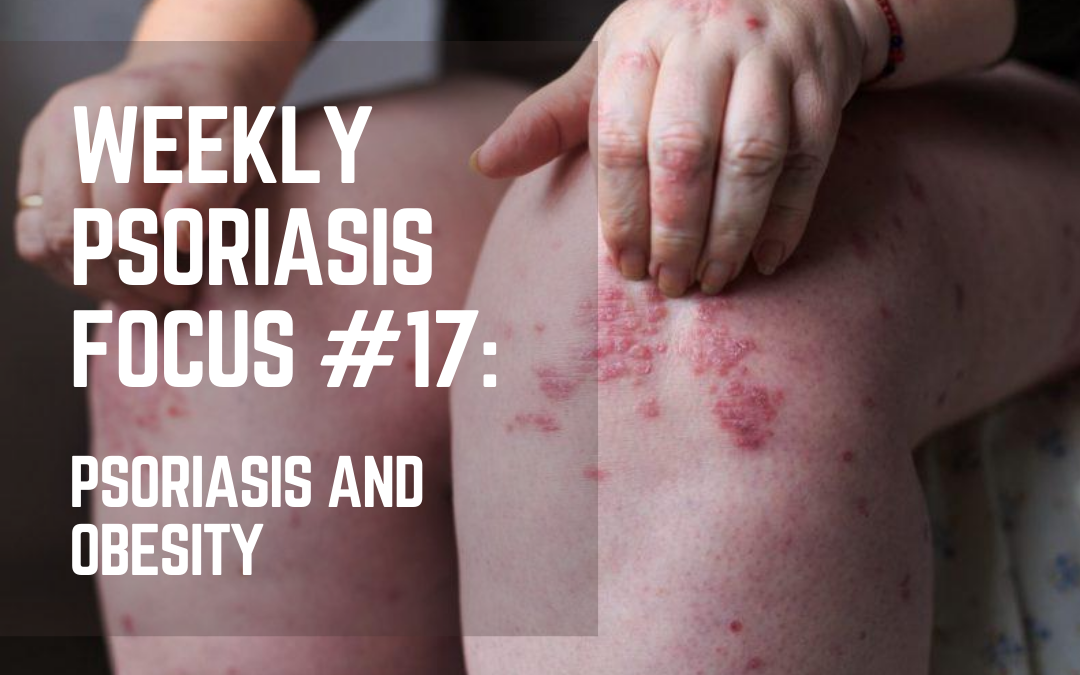 Weekly Psoriasis Focus #17: Psoriasis and Obesity