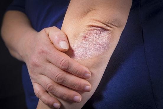 Weekly Psoriasis Focus #3: Common Psoriasis symptoms
