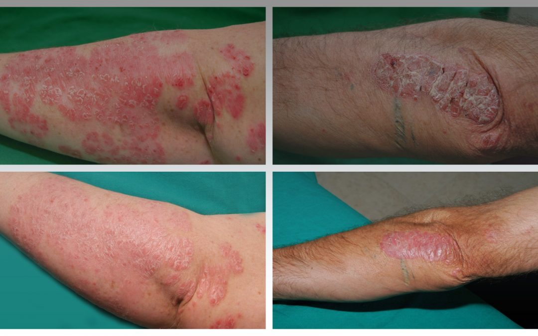 Naphthalan oil in the treatment of psoriasis and psoriatic Arthritis